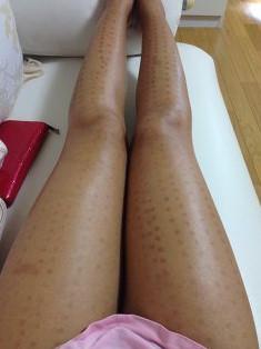 レーザー脱毛により火傷の痕が残った女性の脚